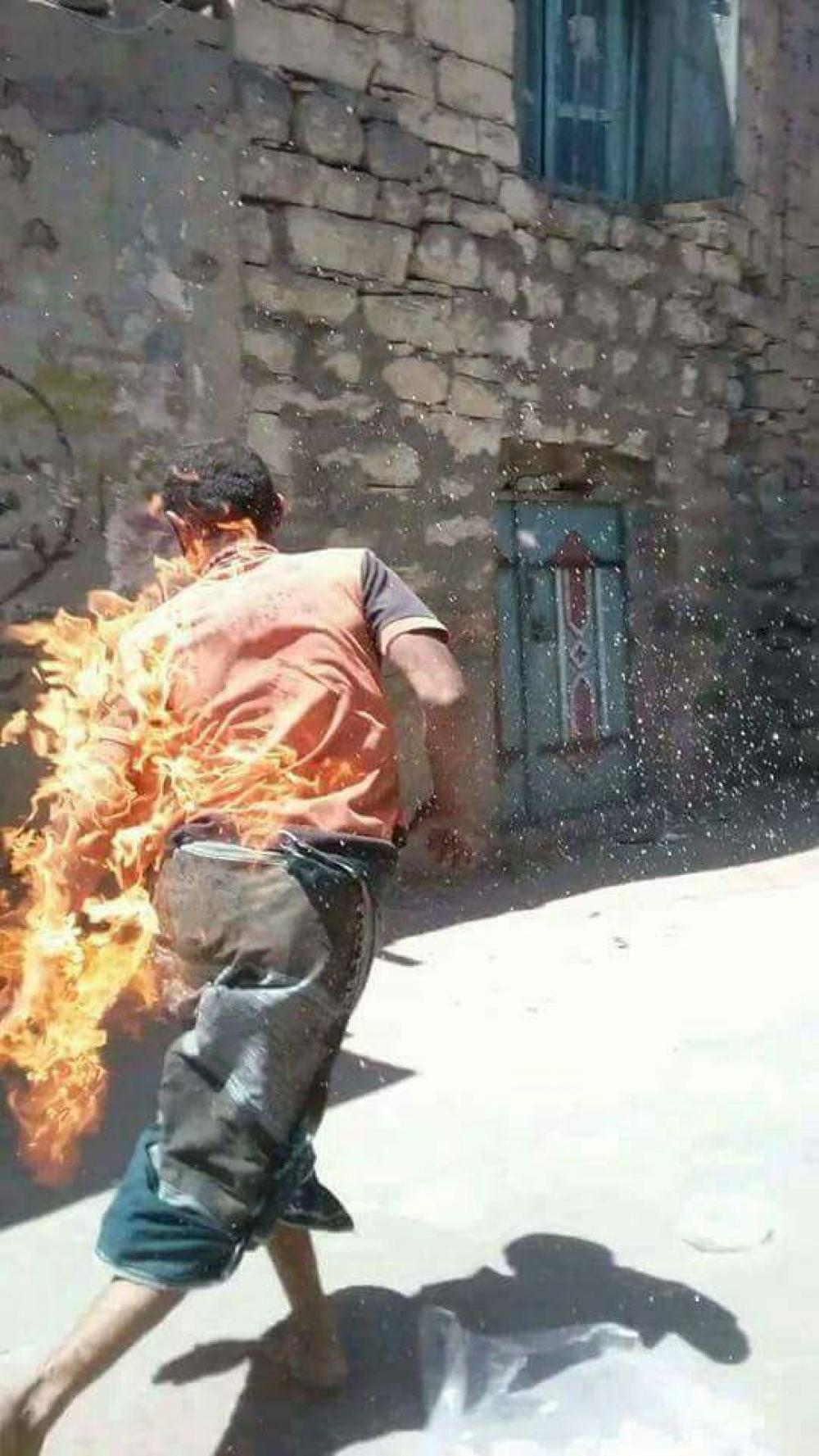 صبية يضرمون النار بمختل عقلي وسط اليمن