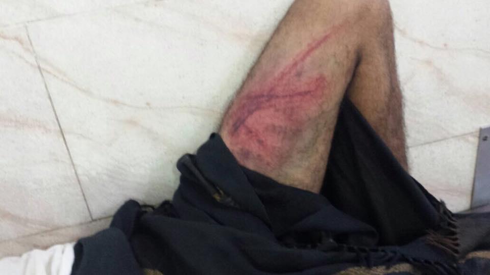 تعذيب شاب في عدن1